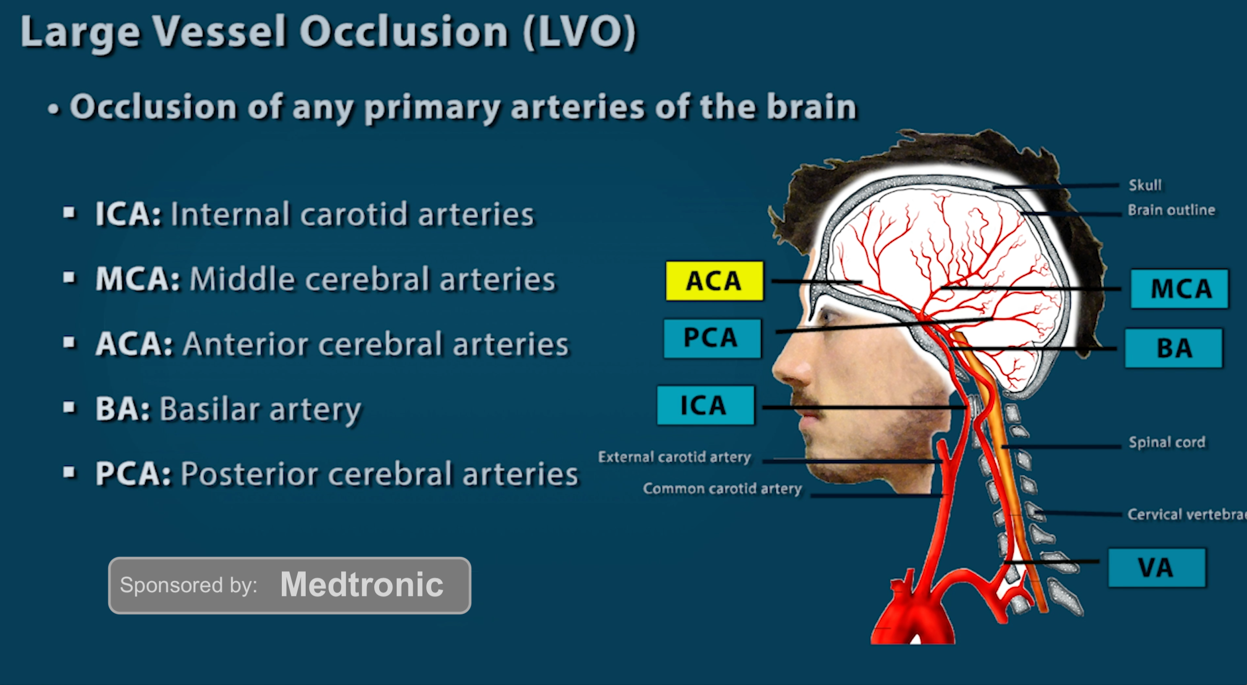 Large Vessel Occlusion Stroke